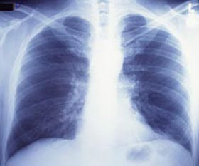 Image of a Chest X-Ray