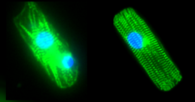 Single cardiac myocytes derived from human induced pluripotent stem cells are microengineered to have the properties of mature cardiac myocytes. The figure shows single cardiomyocytes with α-actinin labeled in green and the nucleus labeled in blue. The stem cell-derived myocyte on the left lacks key properties related to α-actinin organization and expression, while the microengineered stem cell-derived myocyte on the right has physiological organization and expression of α-actinin.