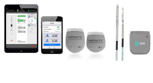 The Abbott InfinityTM DBS Neurostimulation System is an implantable device that delivers low-intensity electrical pulses to nerve centers in the brain using different combinations of amplitude, pulse width, and frequency.
