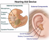Drawing of Hearing Aid