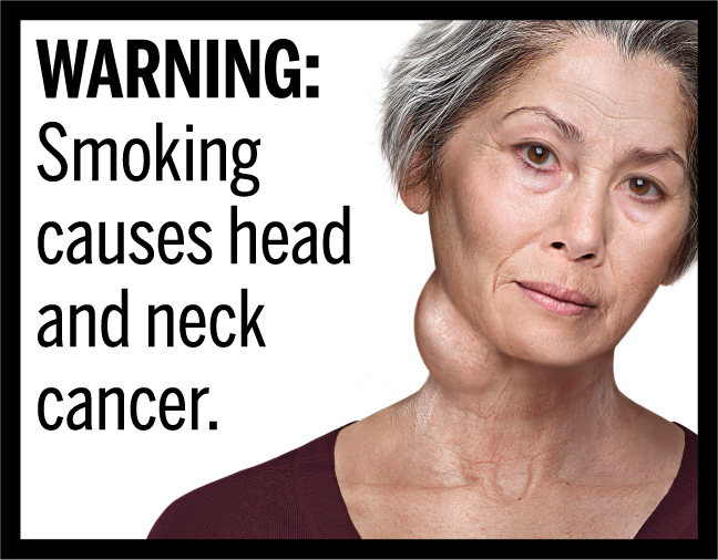 WARNING: Smoking causes head and neck cancer.