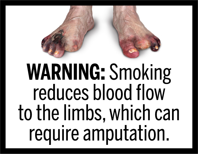 WARNING: Smoking reduces blood flow to the limbs, which can require amputation.