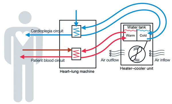 Image of a Heater-Cooler device