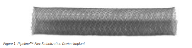 Pipeline Flex Embolization Device Implant