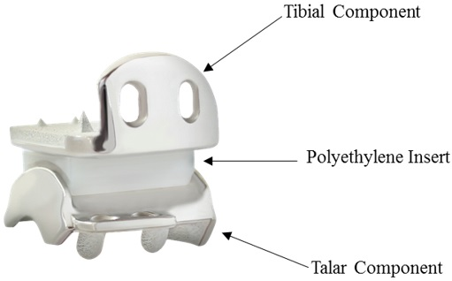 Diagram of the device, indicating tibial component, polyethylene insert, and talar component.