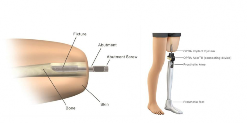 Osseonachored Prostheses for Rehabiliation of Amputees (OPRA)TM Implant System – P190009