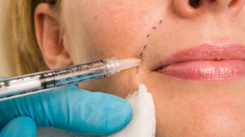 Filling in Wrinkles Safely   FDA, dermalfillerbeforeandafter