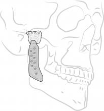 Picture of a TMJ implant.