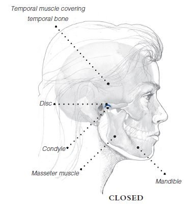 TMJ diagram (closed), idicating temporal muscle covering temporal bone, disc, condyle, masseter muscle, and mandible.