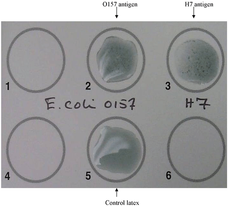 latex agglutination result_ucm173509.png