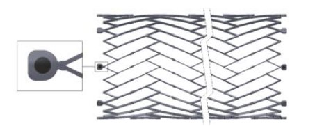 Image of VICI VENOUS STENT® System