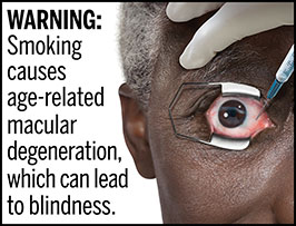 "A rectangular cigarette health warning with a white background and black text that reads: ""WARNING: Smoking causes age-related macular degeneration, which can lead to blindness."" To the right of the text is a photorealistic illustration depicting a closeup of an older man (aged 65 years or older) who has age-related macular degeneration caused by cigarette smoking. The man is receiving an injection in his right eye to prevent additional vessel growth. The warning is surrounded by a black outline."