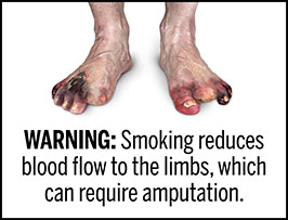 "A rectangular cigarette health warning with a white background and black text that reads: ""WARNING: Smoking reduces blood flow to the limbs, which can require amputation."" Above the text is a photorealistic illustration showing the feet of a person who had several toes amputated due to tissue damage resulting from peripheral vascular disease caused by cigarette smoking. The warning is surrounded by a black outline."