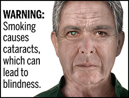 "A rectangular cigarette health warning with a white background and black text that reads: ""WARNING: Smoking causes cataracts, which can lead to blindness."" To the right of the text is a photorealistic illustration depicting a closeup of the face of a man (aged 65 years or older) who has a cataract caused by cigarette smoking. The man's right pupil is covered by a large cataract. The warning is surrounded by a black outline."
