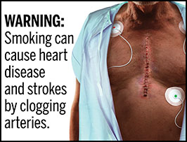 "A rectangular cigarette health warning with a white background and black text reads: ""WARNING: Smoking can cause heart disease and strokes by clogging arteries.""  Next to the text is a photorealistic illustration of a chest of a man (aged 60-70 years) wearing an open hospital gown who recently underwent surgery to treat heart disease caused by smoking. . A large, recently-sutured incision running down the middle of his chest and is undergoing post-operative monitoring. The warning has a black border."