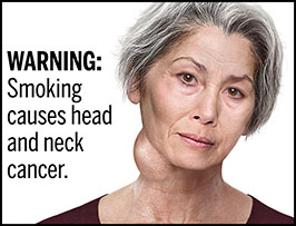 "A rectangular cigarette health warning with a white background and black text that reads: ""WARNING: Smoking causes head and neck cancer."" To the right of the text is a photorealistic illustration showing the head and neck of a woman (aged 50-60 years) who has neck cancer caused by cigarette smoking. The woman has a visible tumor protruding from the right side her neck just below her jawline. The warning is surrounded by a black outline."