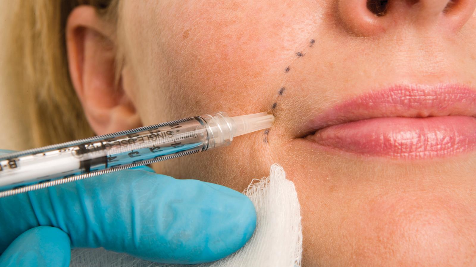 Filling in Wrinkles Safely | FDA