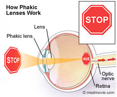 How phakic lenses work