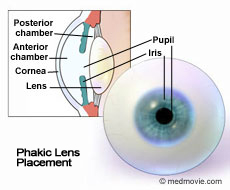 Phakic Lens Placement