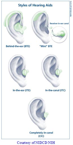 Styles of hearing aids. Depicts behind the ear, mini BTE, in-the-ear ITE, in-the-canal ITC, and completely-in-canal CIC. Courtesy of NIDCD/NIH