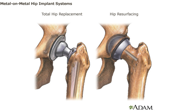 Metal-on-Metal Hip Implants | FDA