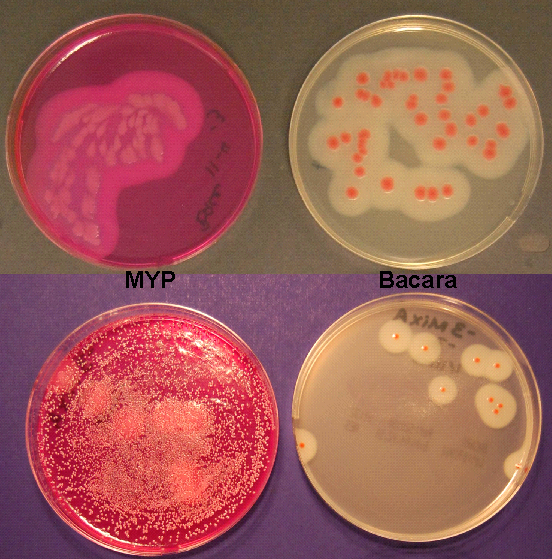 4 Petri dishes with titles demonstrating the difference in colony appearance when bacteria are grown on MYP medium (other organisms can grow) versus Bacara medium (other organisms inhibited)