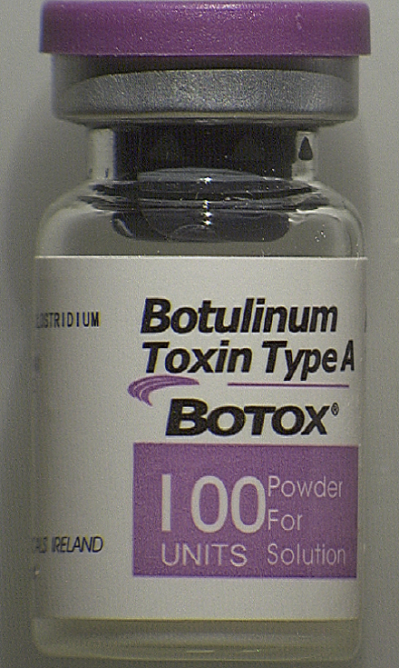Counterfeit Vial of Botox (front)