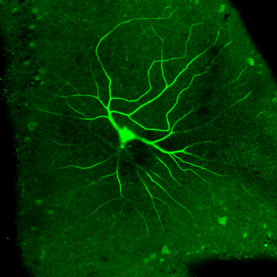 Recorded Alpha Retinal Ganglion Cell